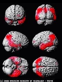 Cerveauamericanacadneur
